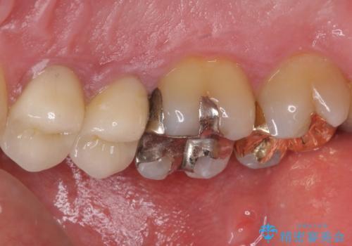 外れてしまった奥歯の銀歯 ゴールドインレーによる修復治療の治療後