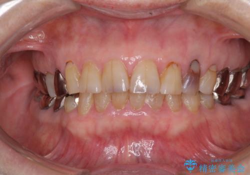 全ての奥歯の銀歯をセラミックに メタルフリー治療の治療前
