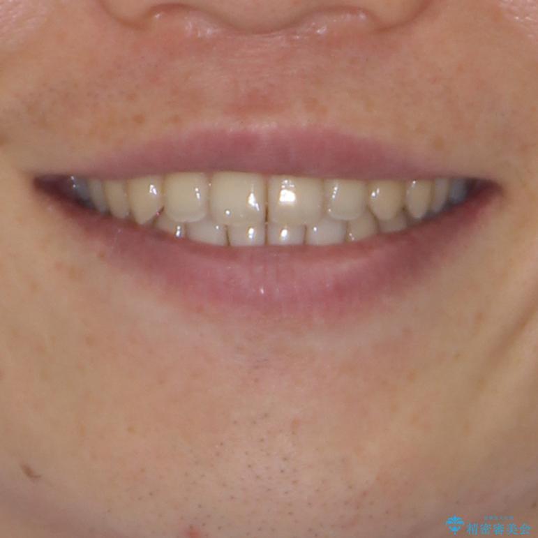すきっ歯の改善 インビザライン矯正治療の治療後(顔貌)