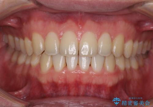 すきっ歯の改善 インビザライン矯正治療の治療後