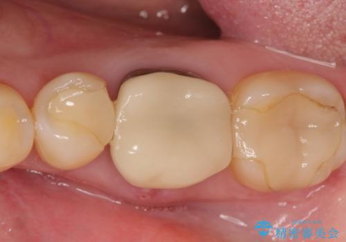 インプラント 割れてしまった歯の治療の治療前