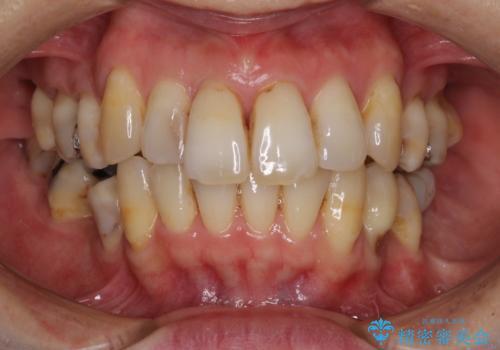 矯正中に黄ばんだ歯を白くしたいの治療前