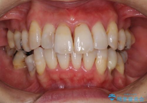 矯正中に黄ばんだ歯を白くしたいの治療後
