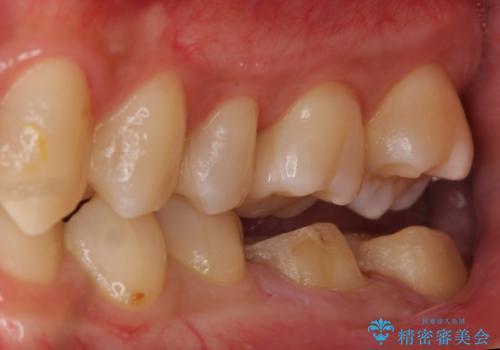 放置した虫歯の治療 親知らずの手前が虫歯の治療中