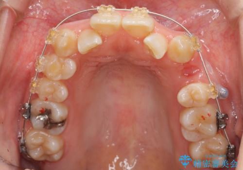 よくある悩み 前歯が裏に2本入っているのを治したいの治療中