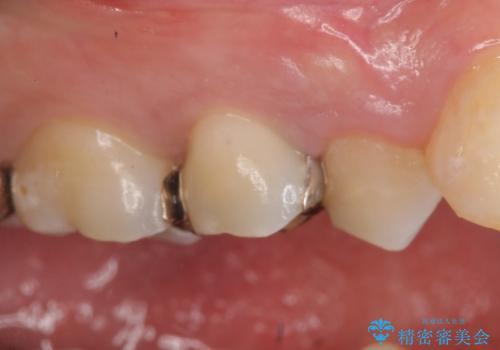 オールセラミッククラウン 銀歯を白くの症例 治療前
