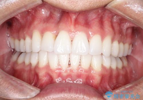 内側に入ってしまった前歯を正しい位置へ  インビザライン矯正の症例 治療後