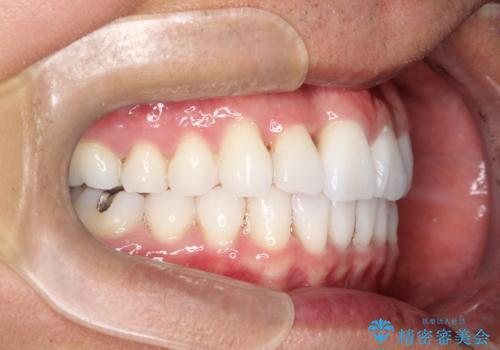 内側に入ってしまった前歯を正しい位置へ  インビザライン矯正の治療後