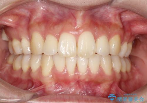 裏側装置で出っ歯の矯正治療の症例 治療後