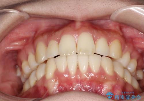 裏側装置で出っ歯の矯正治療の治療後
