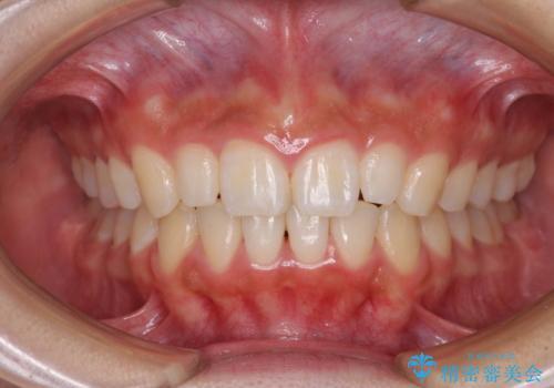 前歯のデコボコを治したい <span class=