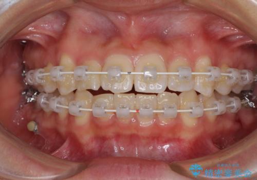 短期間で治療したい 目立たないワイヤー装置での非抜歯矯正の治療中
