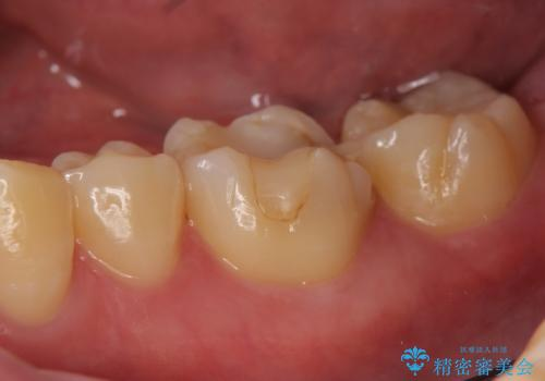 オールセラミッククラウン 欠けてしまった歯の治療の治療前