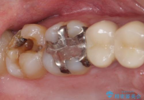 外れてしまった奥歯の銀歯 ゴールドインレーによる修復治療の症例 治療前