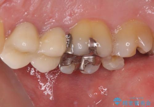 外れてしまった奥歯の銀歯 ゴールドインレーによる修復治療の治療前
