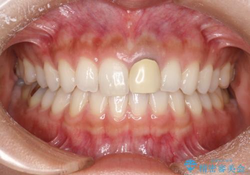 前歯のかぶせ物の色があっていない オールセラミック治療の治療前