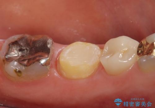 オールセラミッククラウン 歯茎が腫れてくる歯の治療の治療中
