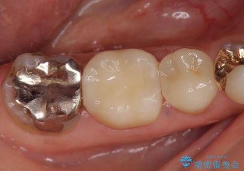 オールセラミッククラウン 歯茎が腫れてくる歯の治療の治療後
