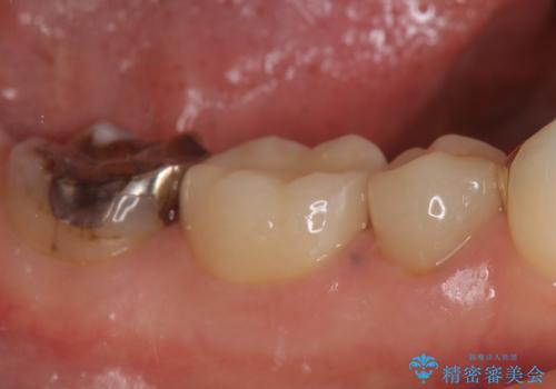 オールセラミッククラウン 歯茎が腫れてくる歯の治療の症例 治療後