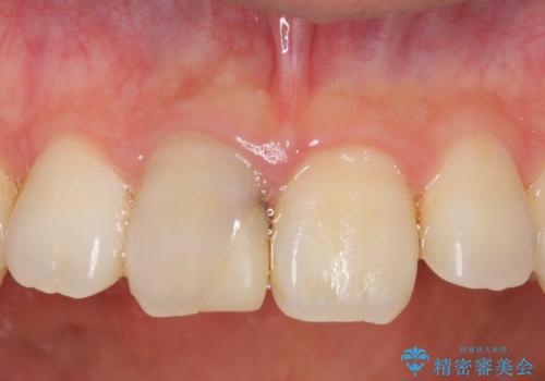 オールセラミッククラウン 変色した前歯の症例 治療前