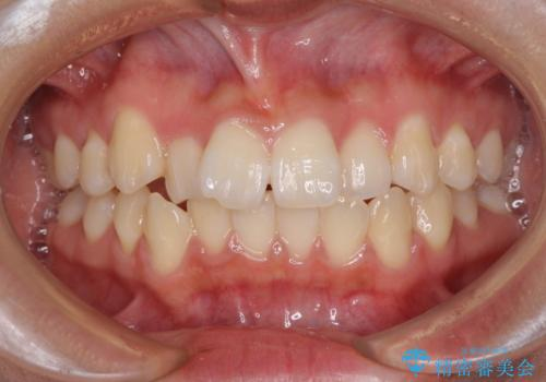 短期間で治療したい 目立たないワイヤー装置での非抜歯矯正の症例 治療前
