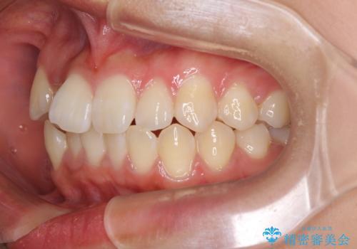 短期間で治療したい 目立たないワイヤー装置での非抜歯矯正の治療前