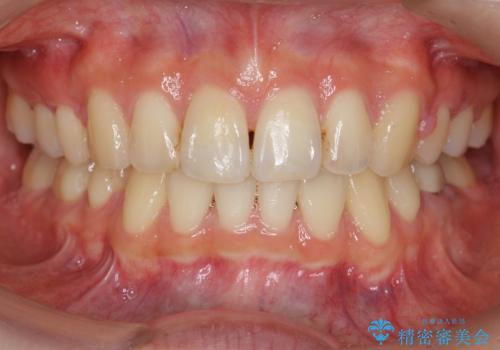「整形した?」と言われるほどの変化! 口元を矯正治療で改善 鼻を高くしたわけでも、アゴに何か入れたわけでもありません。の症例 治療後