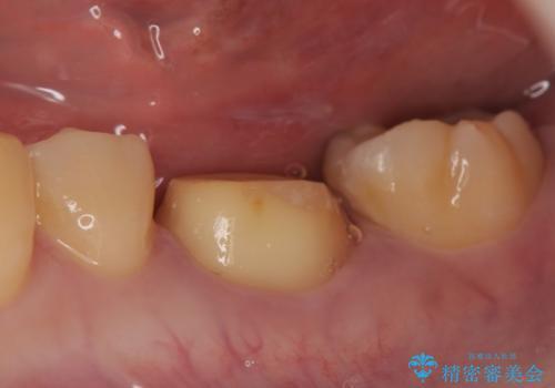 オールセラミッククラウン 欠けてしまった歯の治療の治療中