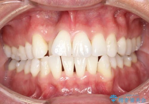 内側に入ってしまった前歯を正しい位置へ  インビザライン矯正の治療中