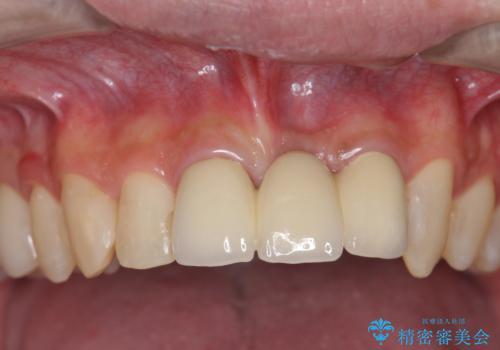 前歯にボールが当たってダメになってしまった とりあえず横の歯に接着剤でつけてしのいでいたのを、しっかりブリッジで治療の症例 治療後