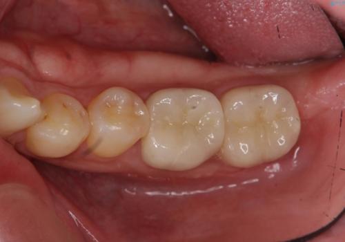 放置した虫歯の治療 親知らずの手前が虫歯の症例 治療後