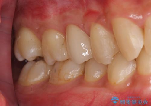放置した虫歯 歯ぐきの中まで虫歯でも、しっかり健康的な部分を引っ張り出して、きちんと処置します。の症例 治療後