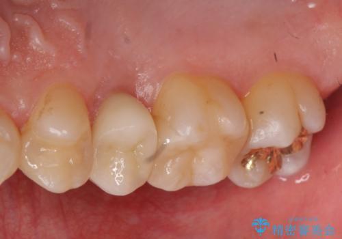 放置した虫歯 歯ぐきの中まで虫歯でも、しっかり健康的な部分を引っ張り出して、きちんと処置します。の治療後
