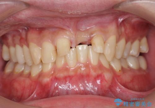 前歯にボールが当たってダメになってしまった とりあえず横の歯に接着剤でつけてしのいでいたのを、しっかりブリッジで治療の治療中
