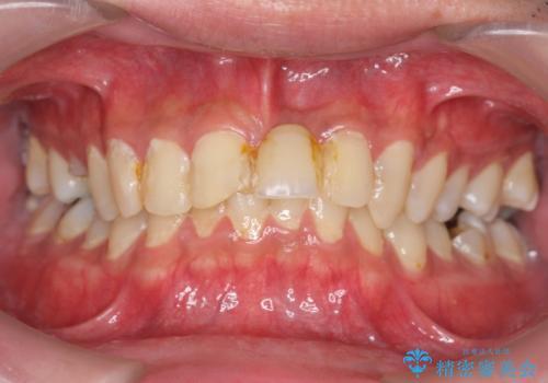 前歯にボールが当たってダメになってしまった とりあえず横の歯に接着剤でつけてしのいでいたのを、しっかりブリッジで治療の治療前