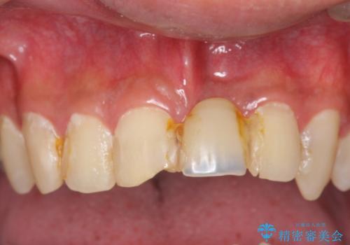 前歯にボールが当たってダメになってしまった とりあえず横の歯に接着剤でつけてしのいでいたのを、しっかりブリッジで治療の症例 治療前
