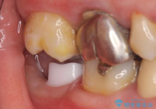 インプラント 抜歯になった奥歯の治療の治療中