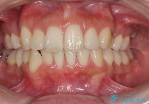 裏側装置で出っ歯の矯正治療の治療中