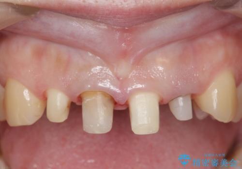 オールセラミッククラウン(スペシャル) 前歯を綺麗にの治療中