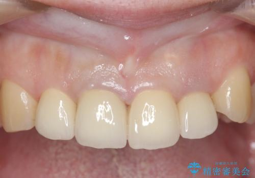 オールセラミッククラウン(スペシャル) 前歯を綺麗にの症例 治療後