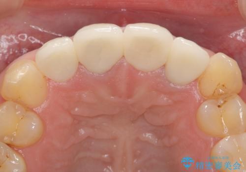 オールセラミッククラウン(スペシャル) 前歯を綺麗にの治療後