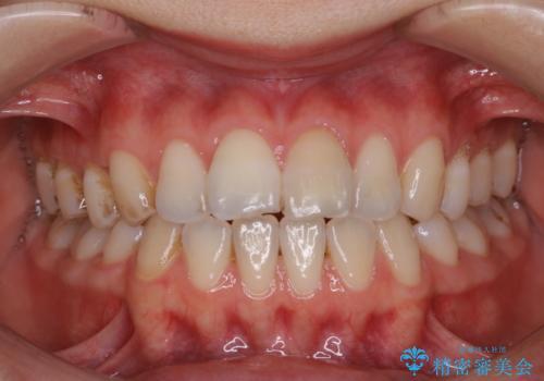 1年ぶりにPMTCで歯の着色落としの治療前