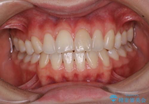 1年ぶりにPMTCで歯の着色落としの治療後