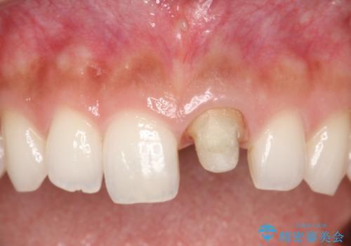 前歯のかぶせ物の色があっていない オールセラミック治療の治療中