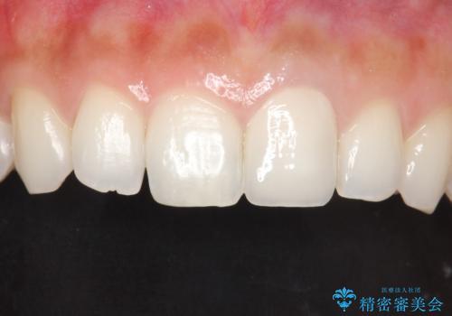 前歯のかぶせ物の色があっていない オールセラミック治療の治療後