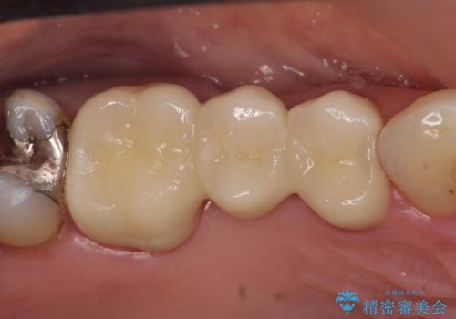 オールセラミッククラウン 歯根破折→抜歯→ブリッジの治療後