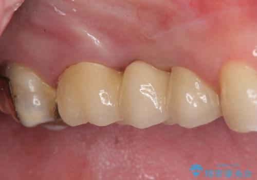 オールセラミッククラウン 歯根破折→抜歯→ブリッジの症例 治療後