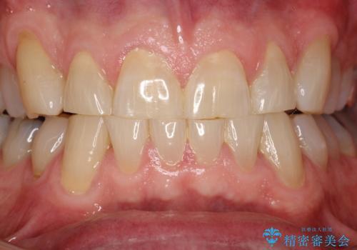 歯石除去 PMTCの治療前