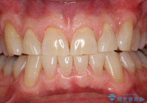 歯石除去 PMTCの治療後