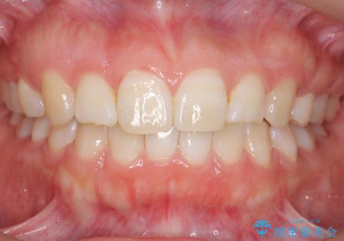 よくある悩み 前歯が裏に2本入っているのを治したいの症例 治療後